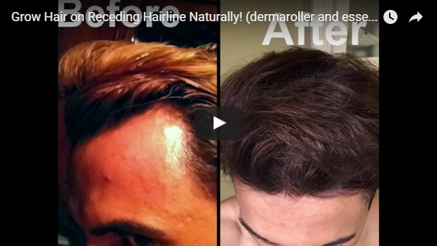 video template for technique to regrow your hairline